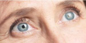 أسباب التهاب العين بعد عملية المياه البيضاء1 300x152 - أسباب التهاب العين بعد عملية المياه البيضاء