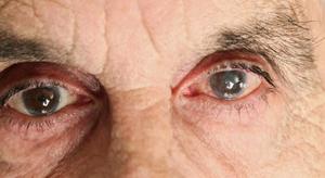 أسباب التهاب العين بعد عملية المياه البيضاء2 300x164 - أسباب التهاب العين بعد عملية المياه البيضاء