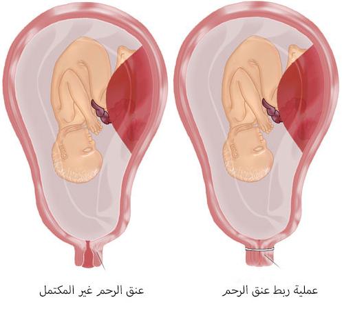 أسباب ربط عنق الرحم