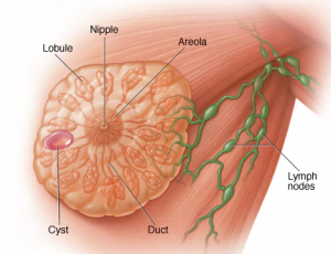 علاج أكياس الثدي المائية 300x230 - علاج أكياس الثدي المائية