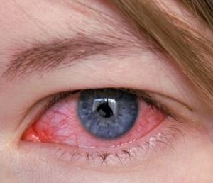 المياه الزرقاء في العين 1 300x258 - المياه الزرقاء في العين