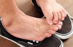 أسباب رائحة القدمين الكريهة وطرق علاجها