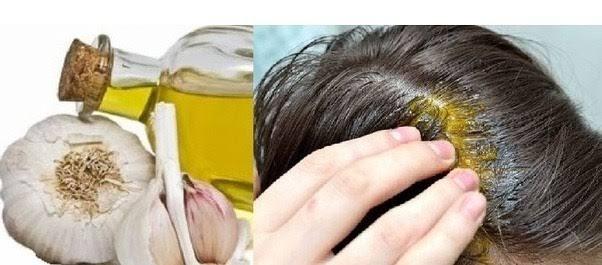 images 26 - فوائد الثوم للشعر